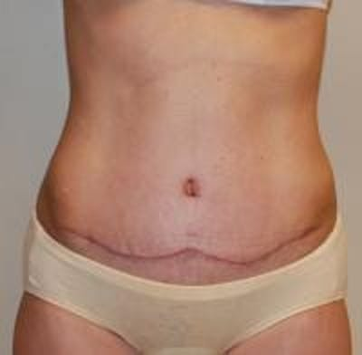 Tummy Tuck Gallery - Patient 22391068 - Image 2