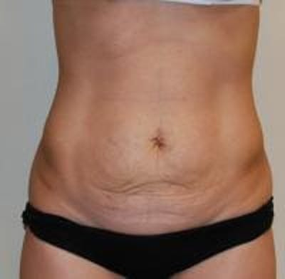 Tummy Tuck Gallery - Patient 22391068 - Image 1