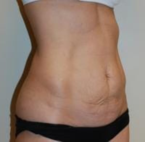 Tummy Tuck Gallery - Patient 22391068 - Image 3