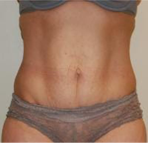 Tummy Tuck Gallery - Patient 22391069 - Image 1