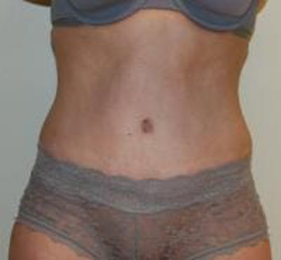 Tummy Tuck Gallery - Patient 22391069 - Image 2