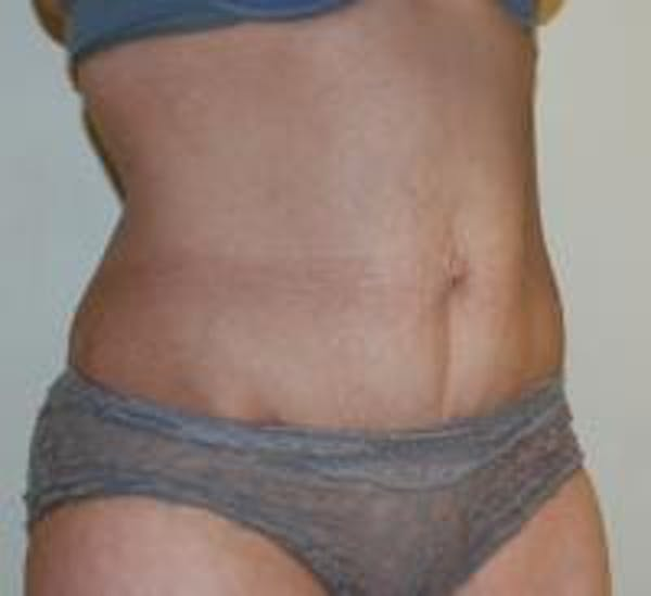 Tummy Tuck Gallery - Patient 22391069 - Image 3
