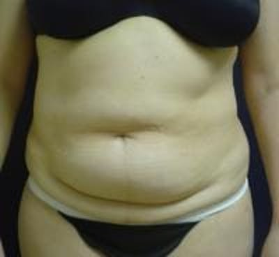 Tummy Tuck Gallery - Patient 22391072 - Image 1