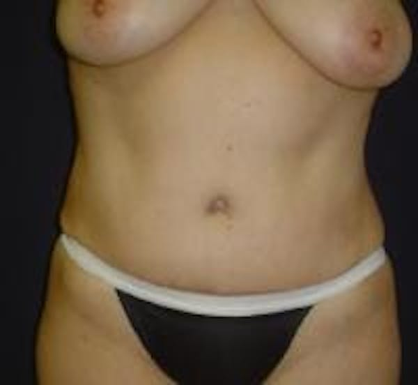 Tummy Tuck Gallery - Patient 22391072 - Image 2
