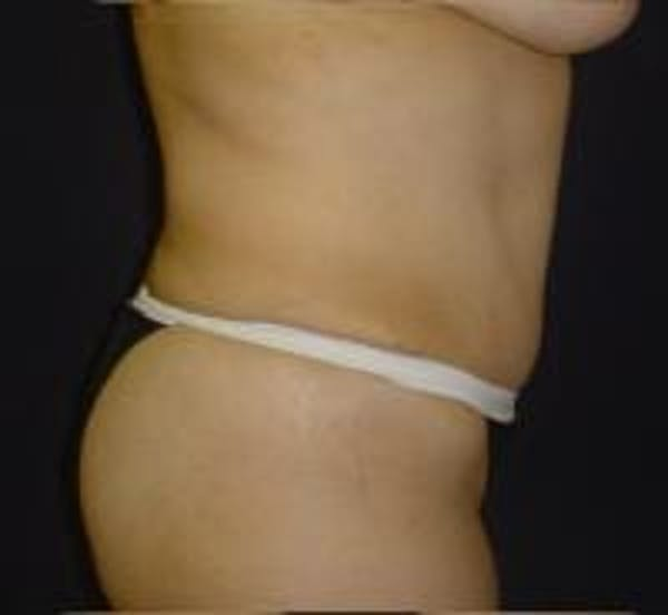 Tummy Tuck Gallery - Patient 22391072 - Image 4