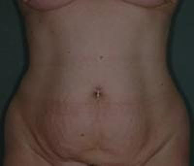 Tummy Tuck Gallery - Patient 22391073 - Image 1