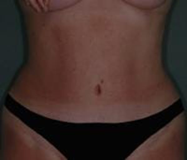 Tummy Tuck Gallery - Patient 22391073 - Image 2