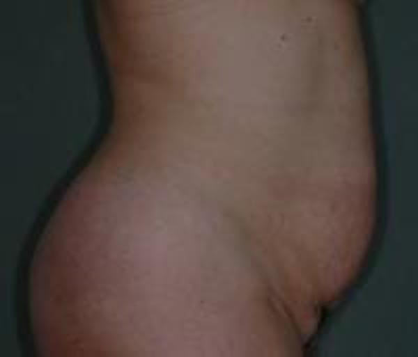 Tummy Tuck Gallery - Patient 22391073 - Image 3
