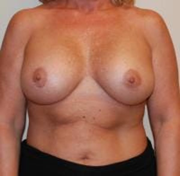 Breast Implant Revision Gallery - Patient 22391077 - Image 2