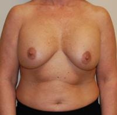 Breast Implant Revision Gallery - Patient 22391077 - Image 1