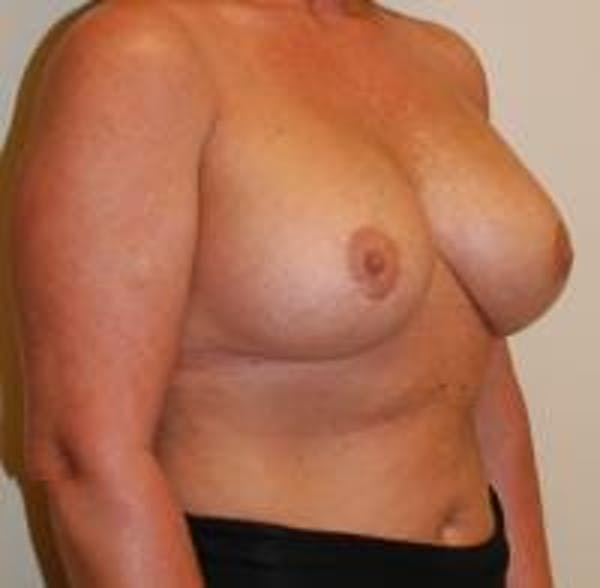 Breast Implant Revision Gallery - Patient 22391077 - Image 4