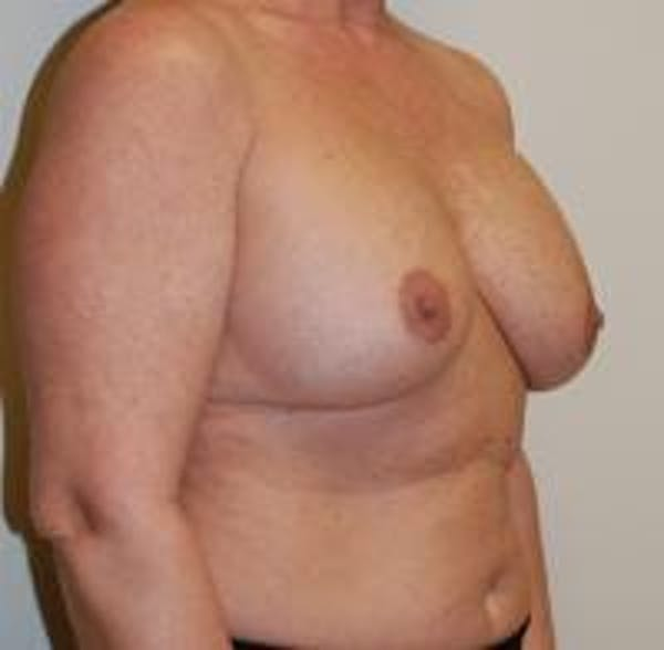 Breast Implant Revision Gallery - Patient 22391077 - Image 3