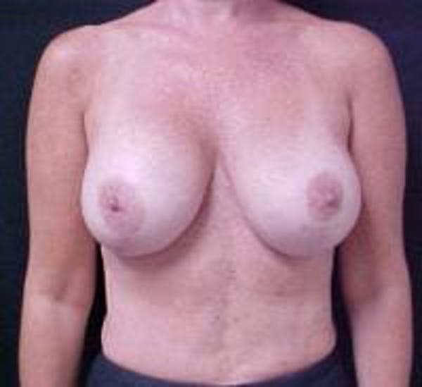 Breast Implant Revision Gallery - Patient 22391078 - Image 1