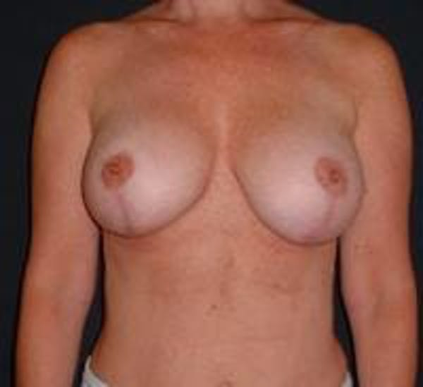 Breast Implant Revision Gallery - Patient 22391078 - Image 2