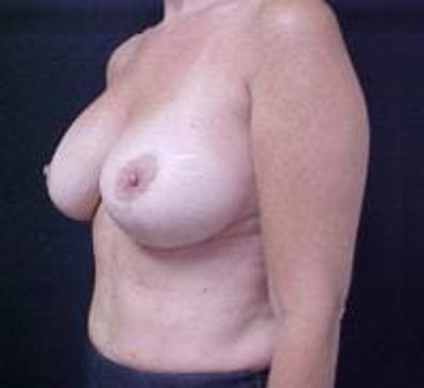 Breast Implant Revision Gallery - Patient 22391078 - Image 3