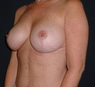 Breast Implant Revision Gallery - Patient 22391078 - Image 4
