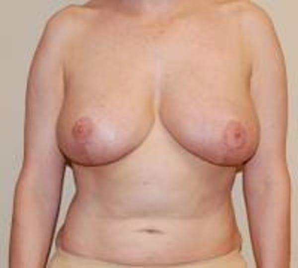 Breast Lift Gallery - Patient 22391115 - Image 2