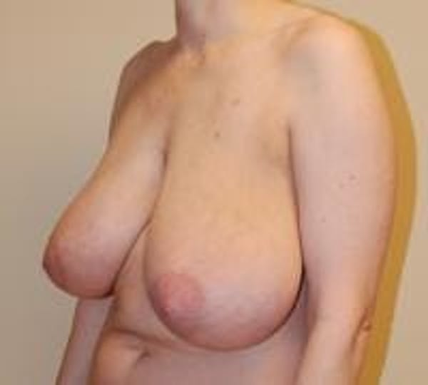 Breast Lift Gallery - Patient 22391115 - Image 3