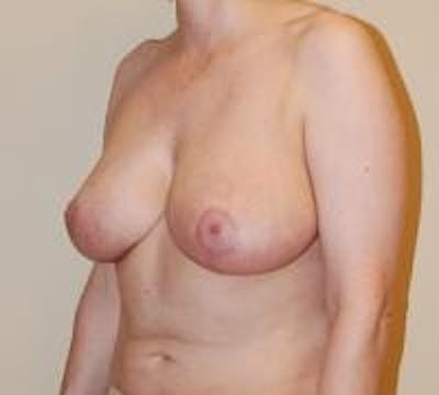 Breast Lift Gallery - Patient 22391115 - Image 4