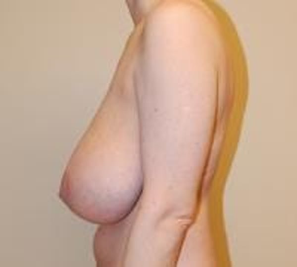 Breast Lift Gallery - Patient 22391115 - Image 5