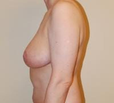Breast Lift Gallery - Patient 22391115 - Image 6