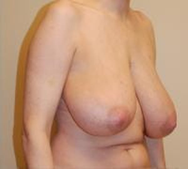 Breast Lift Gallery - Patient 22391115 - Image 7