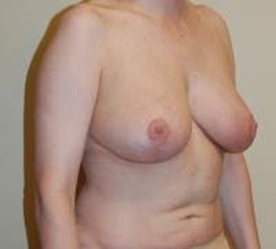 Breast Lift Gallery - Patient 22391115 - Image 8