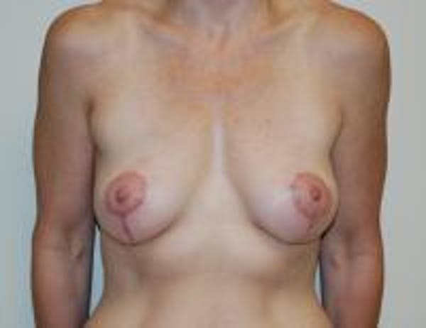 Breast Lift Gallery - Patient 22391116 - Image 2