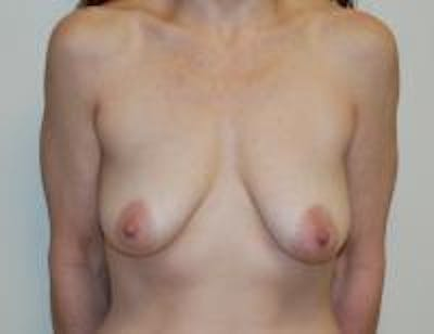 Breast Lift Gallery - Patient 22391116 - Image 1