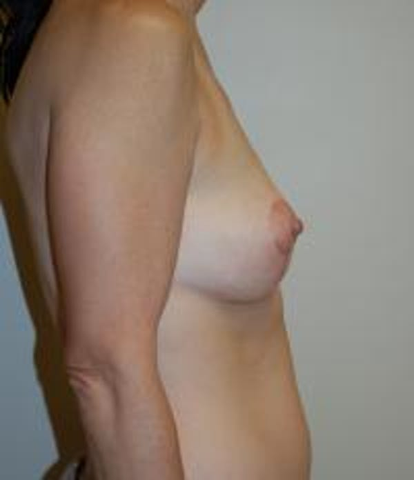 Breast Lift Gallery - Patient 22391116 - Image 4