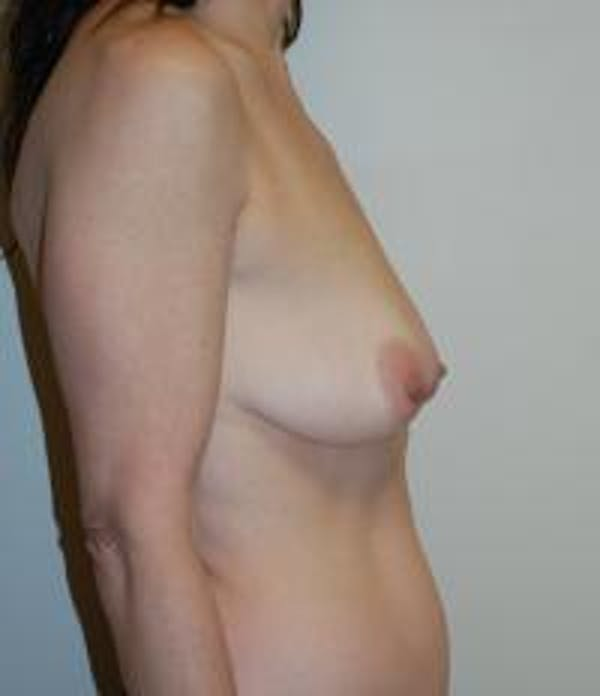 Breast Lift Gallery - Patient 22391116 - Image 3