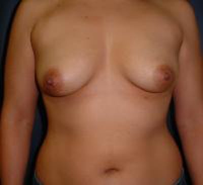 Breast Lift with Augmentation Gallery - Patient 22391135 - Image 1