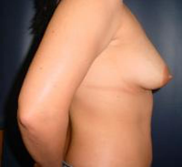Breast Lift with Augmentation Gallery - Patient 22391135 - Image 3