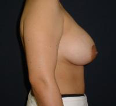 Breast Lift with Augmentation Gallery - Patient 22391135 - Image 4