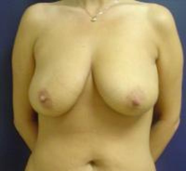 Breast Lift with Augmentation Gallery - Patient 22391136 - Image 1