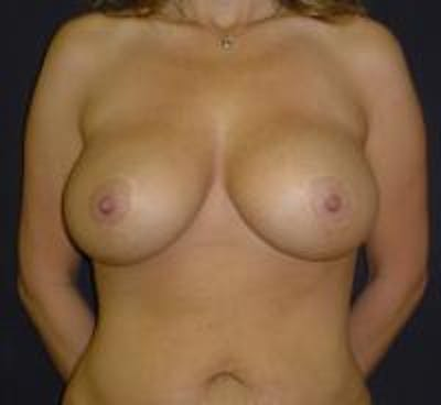 Breast Lift with Augmentation Gallery - Patient 22391136 - Image 2