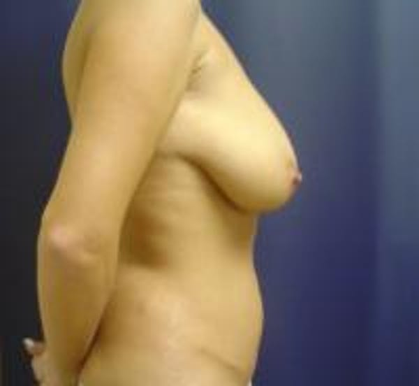 Breast Lift with Augmentation Gallery - Patient 22391136 - Image 3