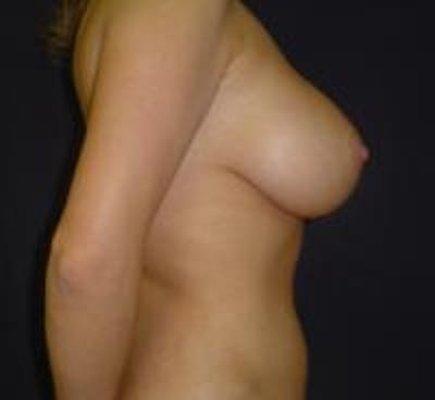 Breast Lift with Augmentation Gallery - Patient 22391136 - Image 4