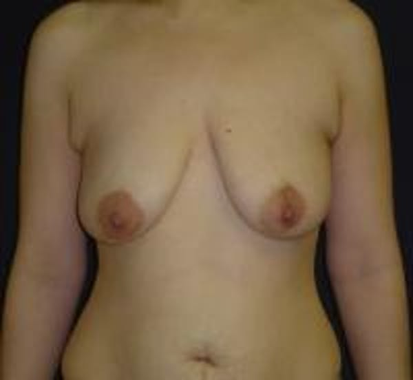 Breast Lift with Augmentation