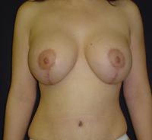 Breast Lift with Augmentation Gallery - Patient 22391137 - Image 2