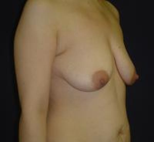 Breast Lift with Augmentation Gallery - Patient 22391137 - Image 3