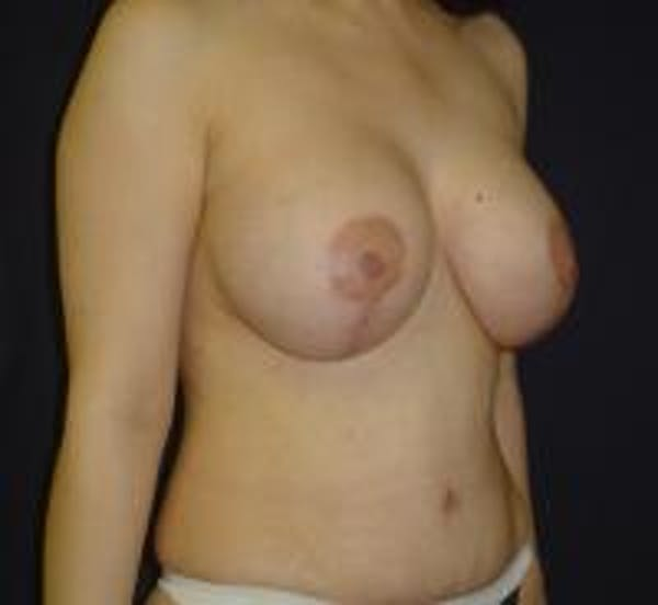 Breast Lift with Augmentation Gallery - Patient 22391137 - Image 4