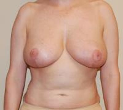 Breast Reduction Gallery - Patient 22391208 - Image 2