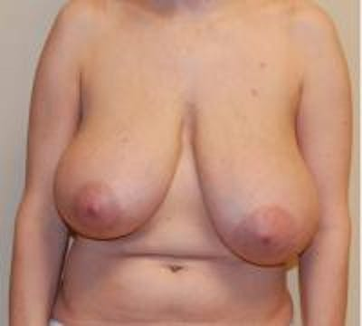 Breast Reduction Gallery - Patient 22391208 - Image 1
