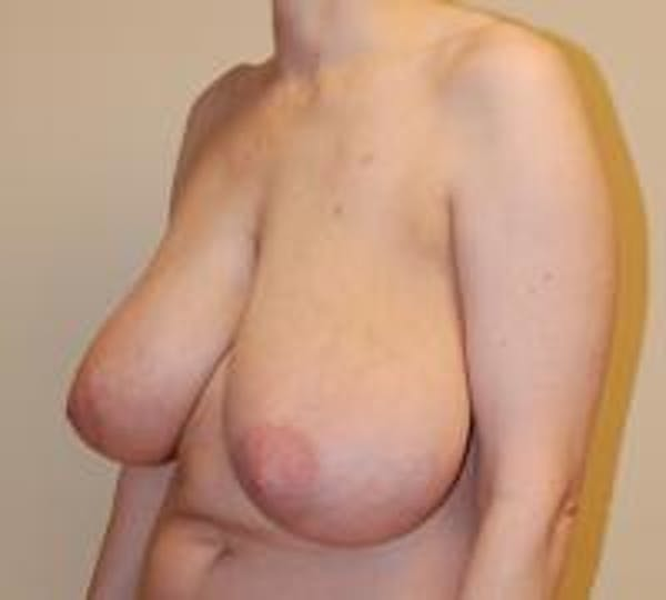 Breast Reduction Gallery - Patient 22391208 - Image 3