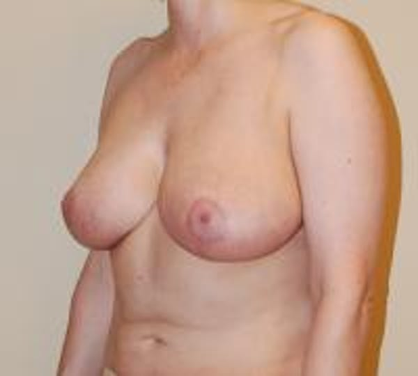 Breast Reduction Gallery - Patient 22391208 - Image 4