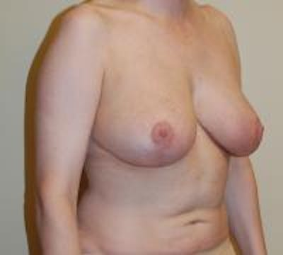 Breast Reduction Gallery - Patient 22391208 - Image 6
