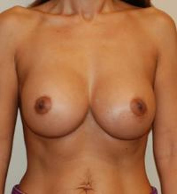 Breast Augmentation Gallery - Patient 22391248 - Image 2