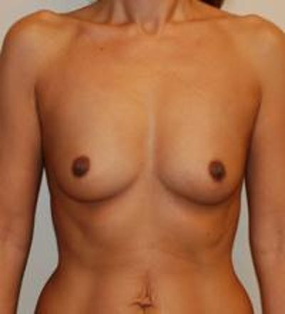 Breast Augmentation Gallery - Patient 22391248 - Image 1