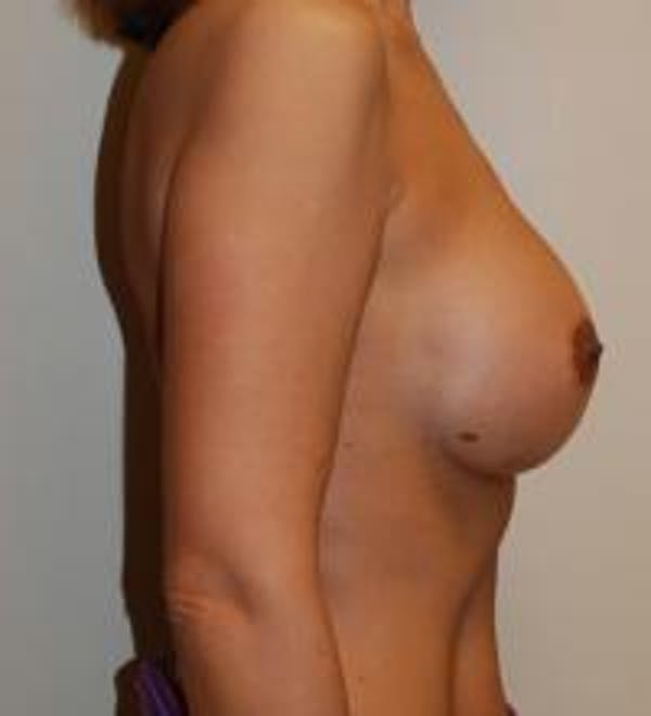 Breast Augmentation Gallery - Patient 22391248 - Image 4